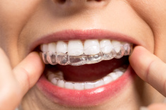 stock-photo-93273435-wearing-orthodontic-silicone-trainer